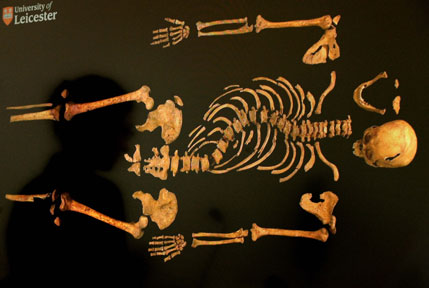 "A view of the skeleton of Richard III displayed during a press conference at the University of Leicester Council Chamber building, Although described as ""comely"" by contemporaries, Richard did suffer from the curved spinal condition known as scoliosis."